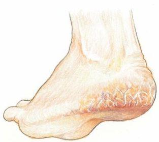 Cracked Heels cure using Natural Ayurvedic Recipes