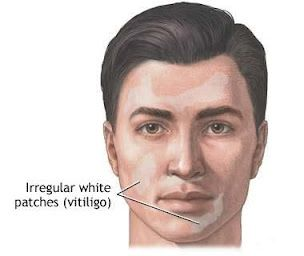Leucoderma (Vitiligo) or Skin Pigmentation home treatment