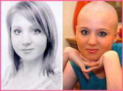 Kesha Ghrita to regrow hair on bald head