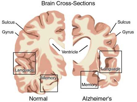 Alzheimer's disease ayurvedic treatment