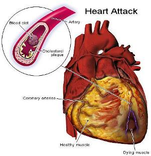 Heart Attacks and Diseases – Reasons in horoscope