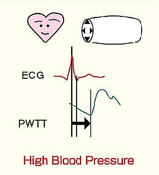 Ayurvedic cure for High Blood Pressure