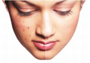 Cure facial acne pic 250