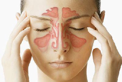 Sinus Infection Suomeksi