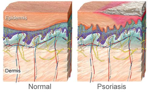 Natural Home Treatment for Psoriasis