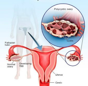 Ayurvedic treatment for PolyCystic Ovary Syndrome (PCOS)