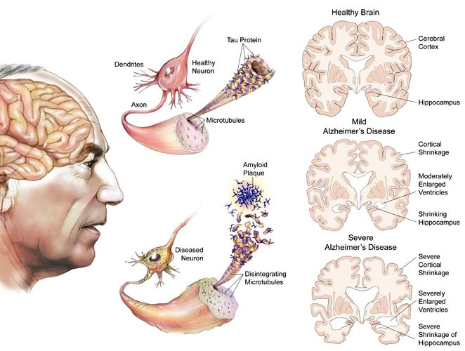 Alzheimer's Disease affected brain