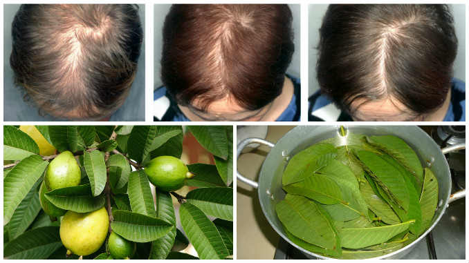 Guava Leaves Hair Care