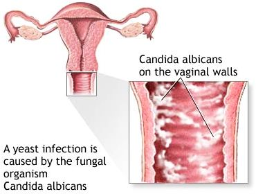 Candidiasis or yeast infection in vagina