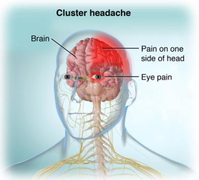 cluster headache natural remedies
