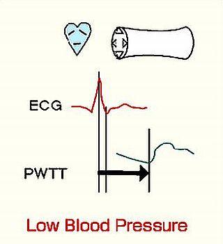 low bloood pressure ayurvedic treatment