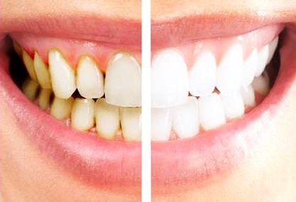teeth sensitivity scaling